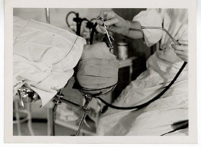View of Joseph H. Ogura performing a tonsillectomy.
